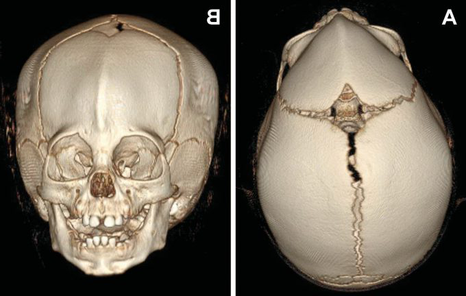 Example image 的 a skull with metopic craniosynostosis